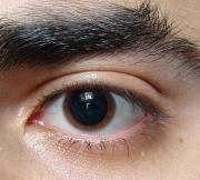 dilated-eye-.jpg