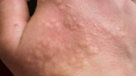 nettles sting