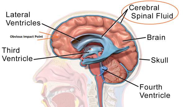 spinal fluid sac